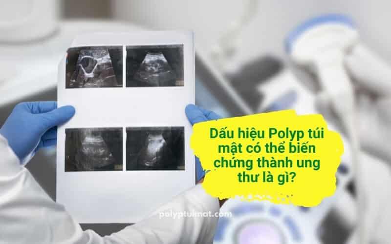 Cách nhận biết polyp túi mật có nguy cơ ung thư hóa và hướng xử lý